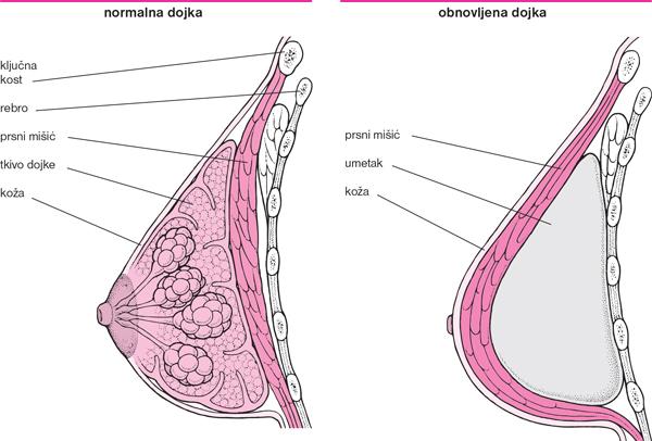 kako izgubiti masno tkivo oko donjeg dijela grudi